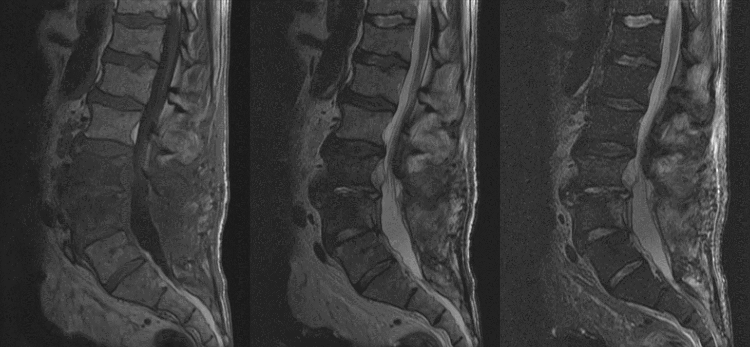 Sagittal T1 T2 And Stir Mri Images Of The Lumbar Spine